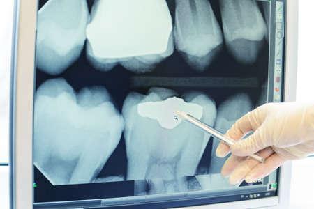 roentgenogram: Hand in glove showing on teeth x-ray