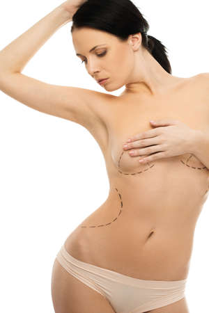 Young beautiful woman with marking on a body for plastic surgery  photo