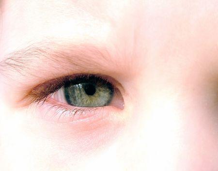 Child eye 1