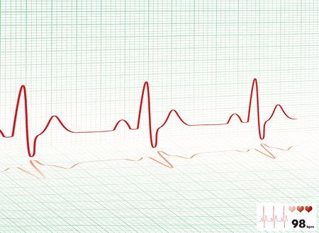 readout: Illustrated heartbeat monitor with a readout and copy space