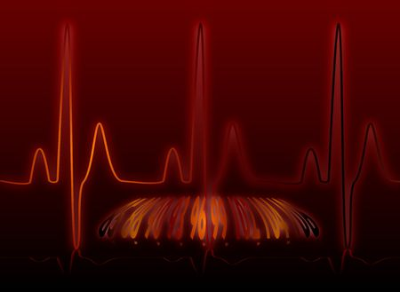 heartbeat monitor with bpm readout overlayed on top of the line Stock Photo - 1963472