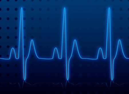 could: Medical heatbeat monitor in blue and black or an images that could be used for network diagnosis