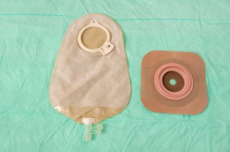 colostomy: Spout-style pouch for ileostomies with a barrier seal attachment