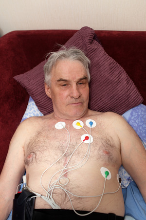palpitations: Man with a holter monitor lying on the sofa