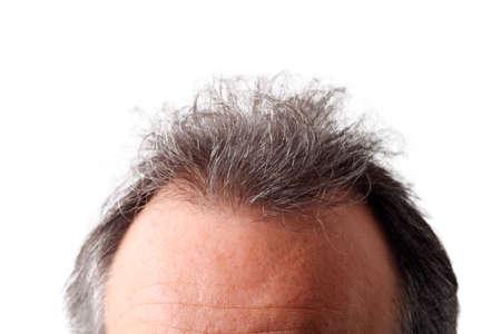 singular: Mans head Stock Photo