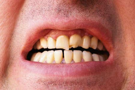 Gebroken tanden Stockfoto
