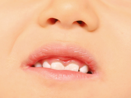 close up of baby teeth Stock Photo - 22250542