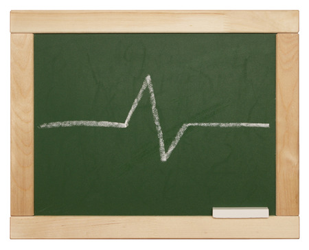 blackboard with line on white background