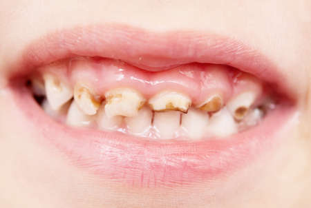 tooth root: close up of bad baby teeth Stock Photo