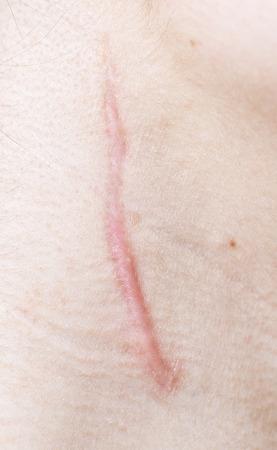 Nahaufnahme von Narbe auf der menschlichen Haut Lizenzfreie Bilder - 34597913