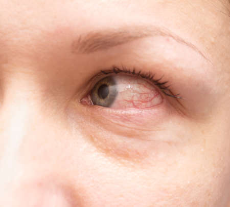 irritated: Close up of irritated red bloodshot eye