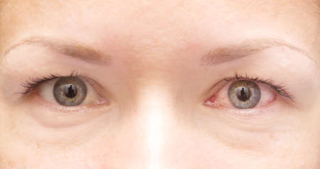 Nahaufnahme von gesunden und gereizte rote Augen