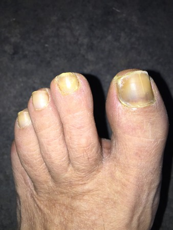 fungal disease: Toe nails with mucosis