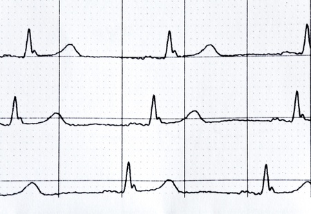 jointless: heart rate in graph on a paper from the medical device Stock Photo