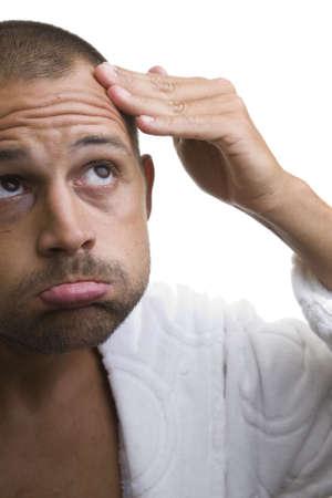 receding: Man pointing out his baldspot Stock Photo