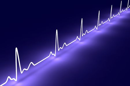 electrocardiogram: Pulse trace Stock Photo