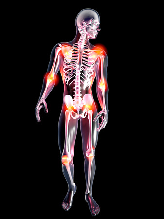 Aching joints   3D rendered illustration  Isolated on black