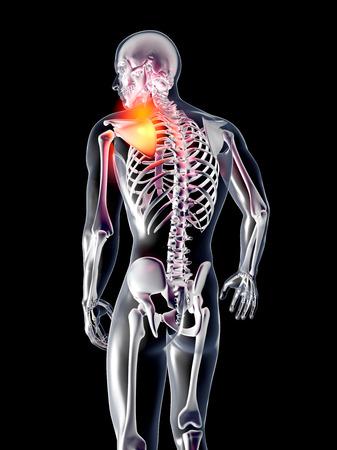 bursitis: A hurting shoulder  3D rendered illustration  Isolated on black