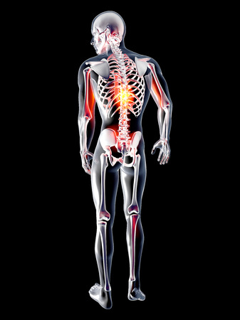Pain in the back. 3D rendered illustration. Isolated on black.