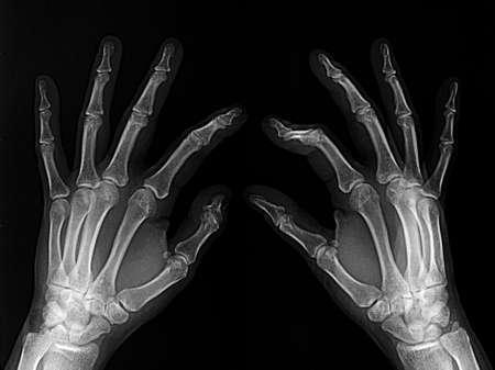 Broken finger on x-rayed film