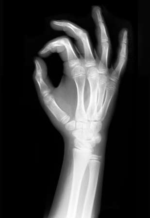 radiation therapy: X rayed OK sign full detailed