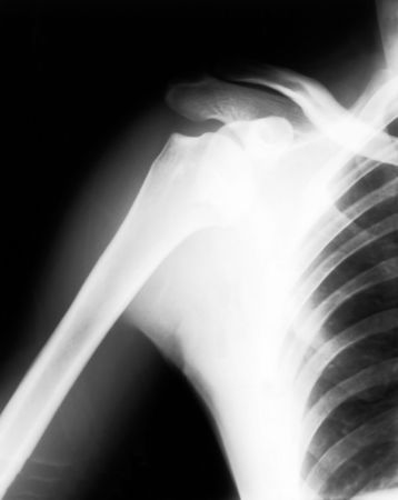 Broken shoulder on black and white x-ray film photo