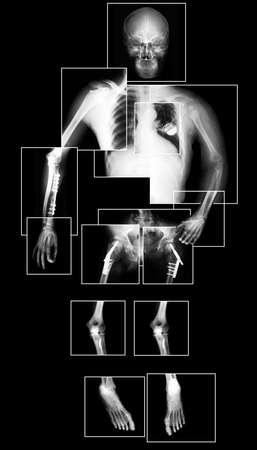 X-ray picture of human