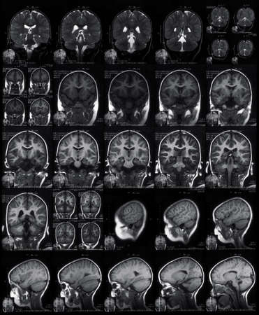 MRI head scan photo