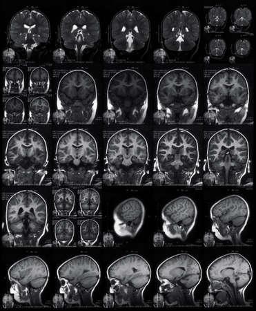 MRI head scan Stock Photo - 3402064