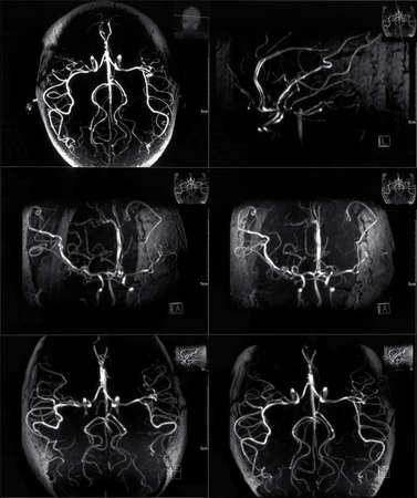 n�vrose: IRM de veines dans la t�te de l'homme Banque d'images