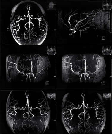 Mri scan of veins in human head photo