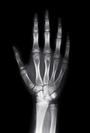 artrite: Immagine a raggi X della mano umana