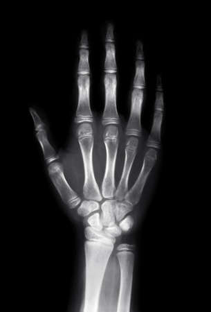 radiogram: X ray image of human hand