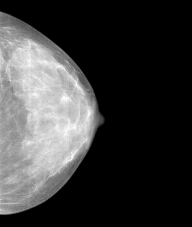 Mammographic x-ray picture of chest gland photo