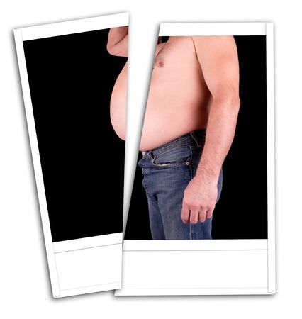 obesidad: Foto hombre gordo con un corte del vientre