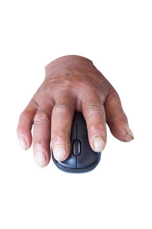 communicable: male hands with dermatoses using mouse in white background