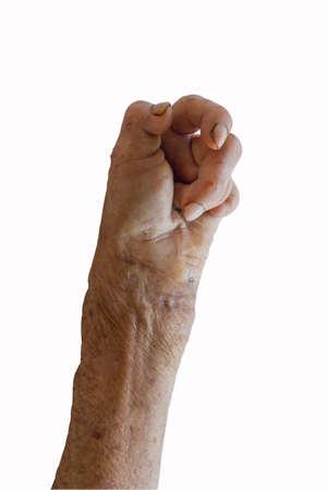 l�pre: la main gauche de la l�pre isol� sur fond blanc Banque d'images