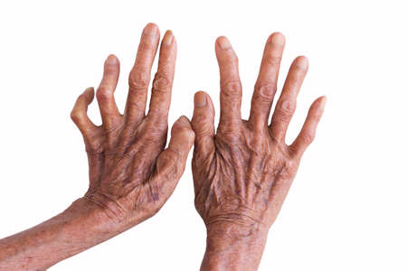 interdigital: hands of a leprosy isolated on white background Stock Photo