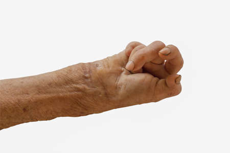 interdigital: right hand of a leprosy isolated on white background