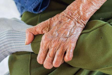 lepra: la mano izquierda de una lepra aisladas sobre fondo blanco