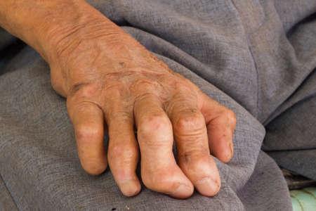 lepra: la mano derecha de una lepra aisladas sobre fondo blanco Foto de archivo