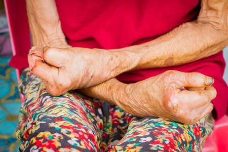 クローズ アップ手昔のハンセン病、切断された手から苦しんでいる女性 写真素材 - 46715379