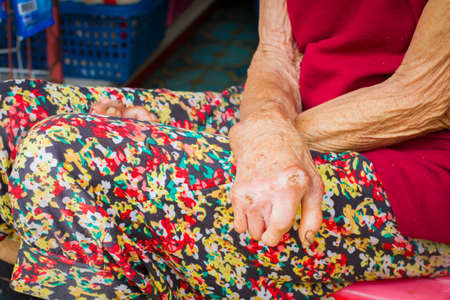 closeup hands of old woman suffering from leprosy, amputated hands