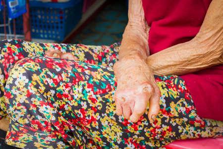lepra: manos primer de la mujer de edad que sufren de lepra, manos amputadas Foto de archivo