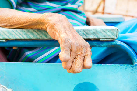 lepra: primer plano la mano del anciano que sufre de lepra, mano amputada, en silla de ruedas Foto de archivo