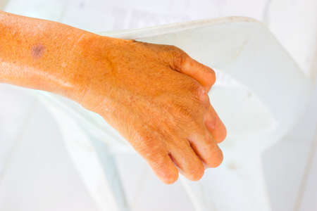 senseless: closeup hand of old man suffering from leprosy on the backrest of plastic chair.
