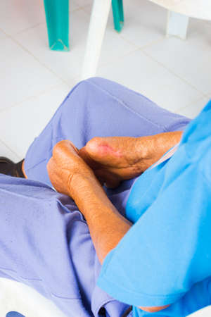 lepra: Primer plano de las manos amputadas anciano enfermos de lepra.