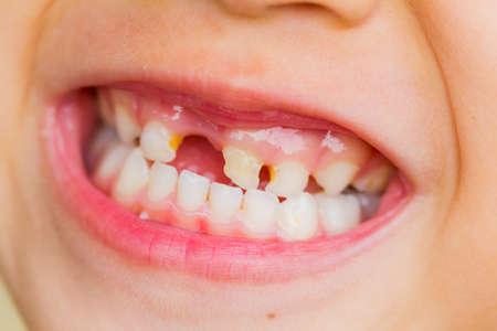 selective focus broken teeth of asian little girl. Stock Photo