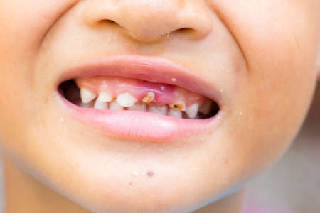 selective focus broken teeth of smiling asian little boy