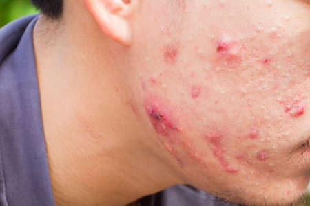 overproduction: closeup horizontal photo of male cheek with big pimple or acne abscess.